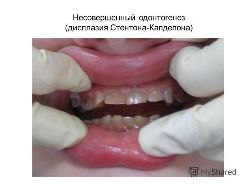 Несовершенный одонтогенез (дисплазия Стентона-Капдепона)