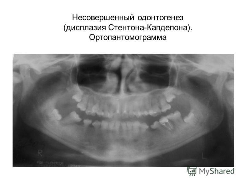 Несовершенный одонтогенез (дисплазия Стентона-Капдепона). Ортопантомограмма