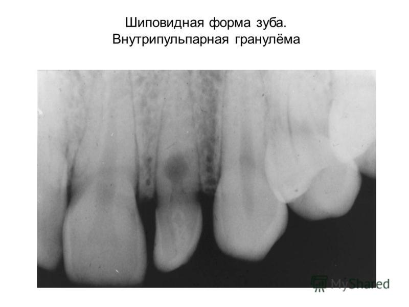 Шиповидная форма зуба. Внутрипульпарная гранулёма