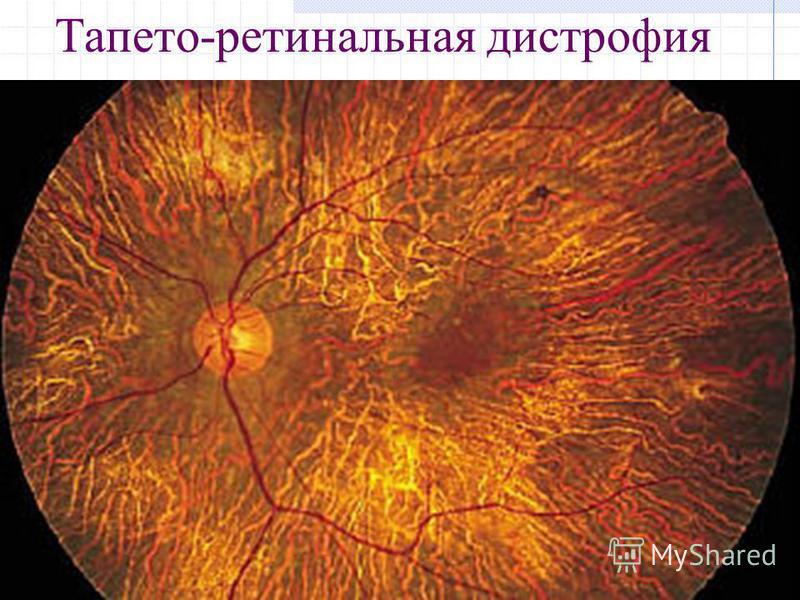 Тапето-ретинальная дистрофия
