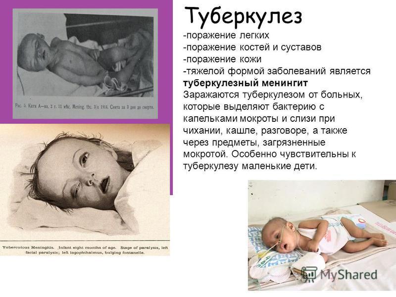 -поражение легких -поражение костей и суставов -поражение кожи -тяжелой формой заболеваний является туберкулезный менингит Заражаются туберкулезом от больных, которые выделяют бактерию с капельками мокроты и слизи при чихании, кашле, разговоре, а так