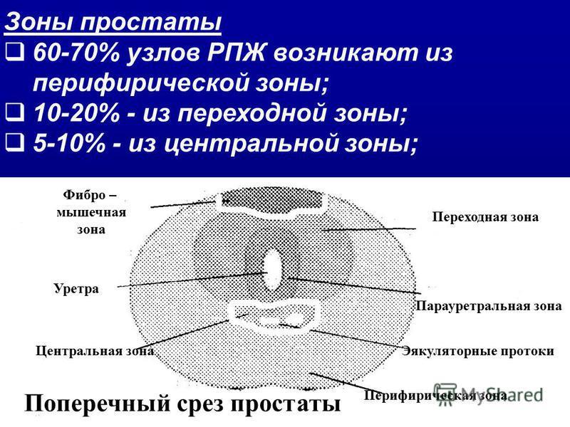Зоны простаты 60-70% узлов РПЖ возникают из периферической зоны; 10-20% - из переходной зоны; 5-10% - из центральной зоны; Фибро – мышечная зона Уретра Центральная зона Перифирическая зона Эякуляторные протоки Парауретральная зона Переходная зона Поп