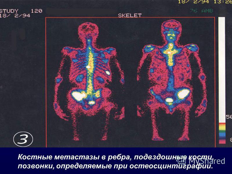 Костные метастазы в ребра, подвздошные кости, позвонки, определяемые при остеосцинтиграфии.