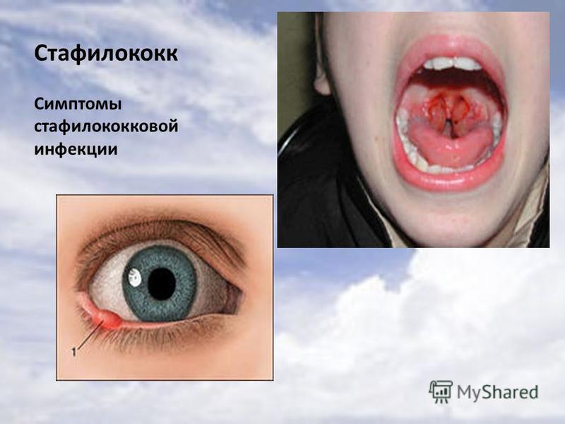 Стафилококк Симптомы стафилококковой инфекции