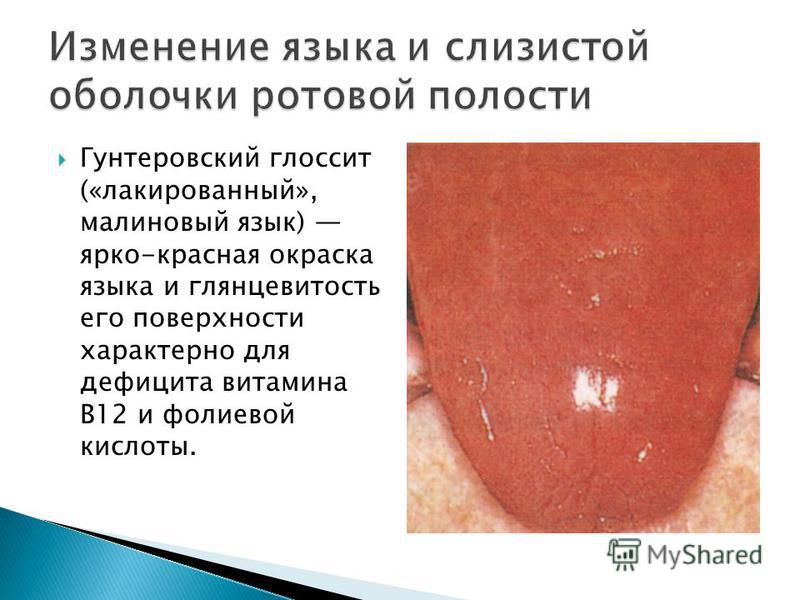 Гунтеровский глоссит («лакированный», малиновый язык) ярко-красная окраска языка и глянцевитость его поверхности характерно для дефицита витамина В12 и фолиевой кислоты.