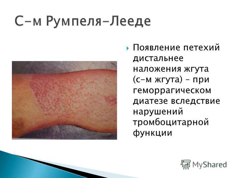 Появление петехий дистальное наложения жгута (с-м жгута) – при геморрагическом диатезе вследствие нарушений тромбоцитарной функции