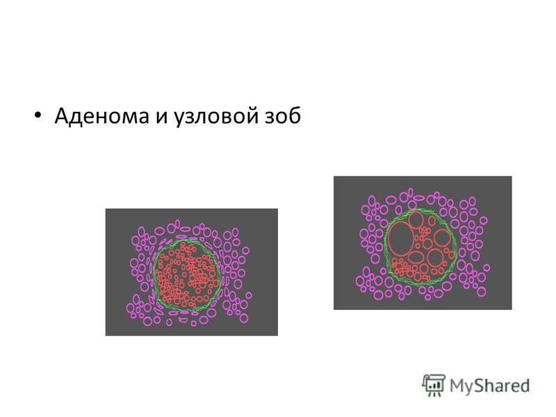 Аденома и узловой зоб