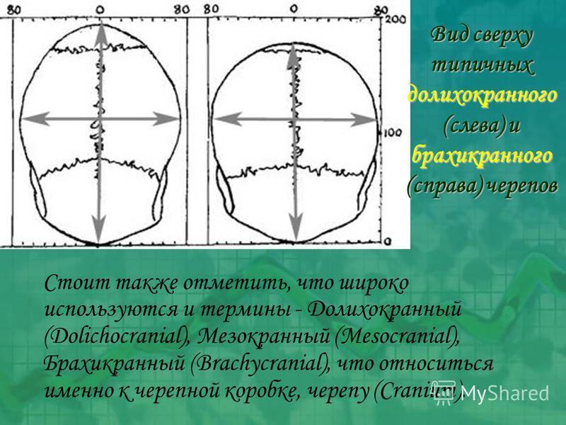 Стоит также отметить, что широко используются и термины - Долихокранный (Dolichocranial), Мезокранный (Mesocranial), Брахикранный (Brachycranial), что относиться именно к черепной коробке, черепу (Cranium). Вид сверху типичных долихокранного (слева)