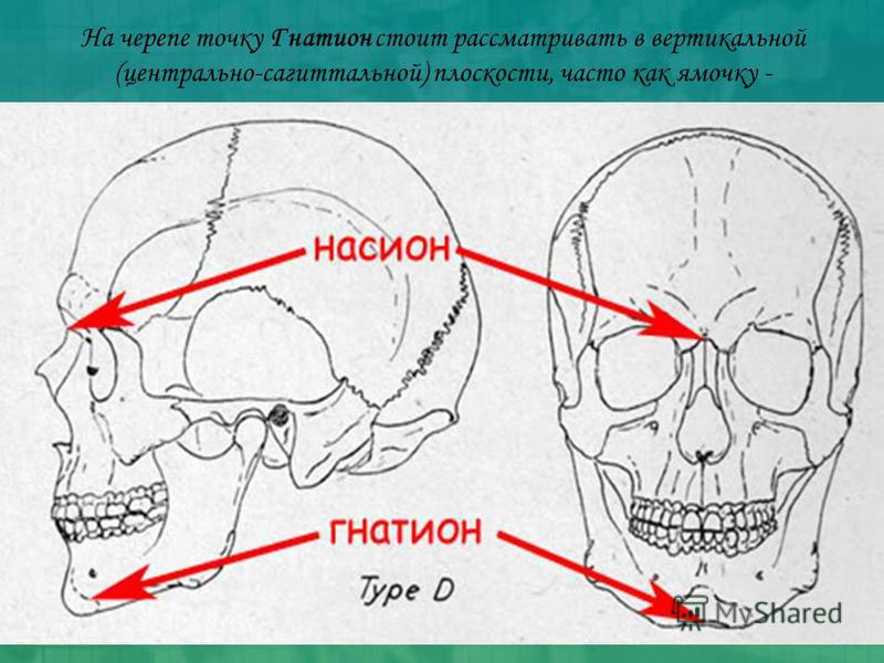 На черепе точку Гнатион стоит рассматривать в вертикальной (центрально-сагиттальной) плоскости, часто как ямочку -