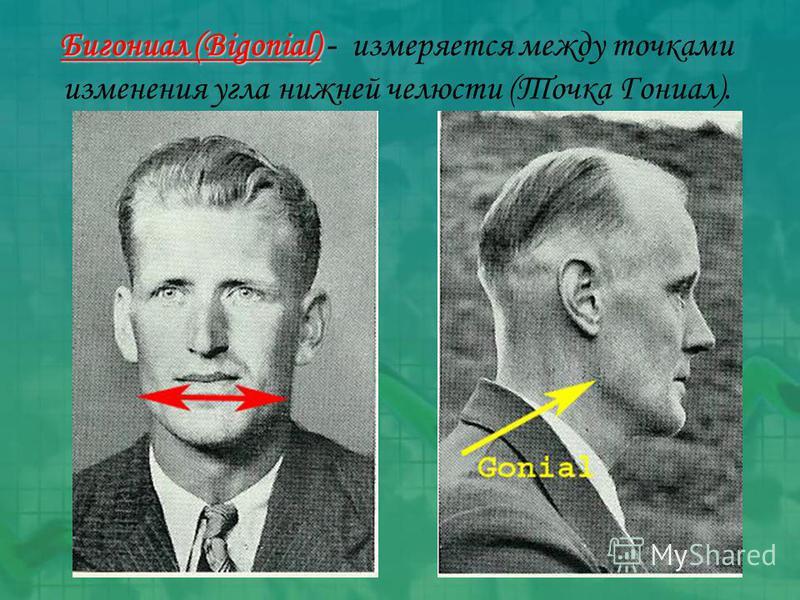 Бигониал (Bigonial) Бигониал (Bigonial) - измеряется между точками изменения угла нижней челюсти (Точка Гониал).