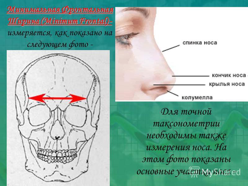 Минимальная Фронтальная Ширина (Minimum Frontal) - Минимальная Фронтальная Ширина (Minimum Frontal) - измеряется, как показано на следующем фото - Для точной аксонометрии необходимы также измерения носа. На этом фото показаны основные участки носа -