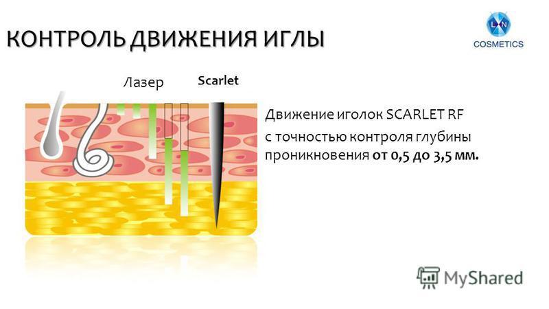 КОНТРОЛЬ ДВИЖЕНИЯ ИГЛЫ Движение иголок SCARLET RF 10 Лазер с точностью контроля глубины проникновения от 0,5 до 3,5 мм. Scarlet