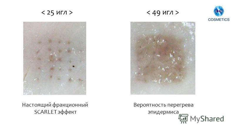Настоящий фракционный SCARLET эффект Вероятность перегрева эпидермиса
