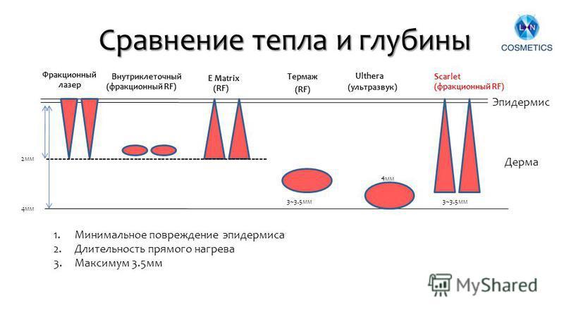 Сравнение тепла и глубины 13 2 мм 4 мм Фракционный лазер Внутриклеточный (фракционный RF) E Matrix (RF) Термаж (RF) Scarlet (фракционный RF) 3~3.5 мм Эпидермис Дерма 3~3.5 мм -------------------------------------------------------- Ulthera (ультразву