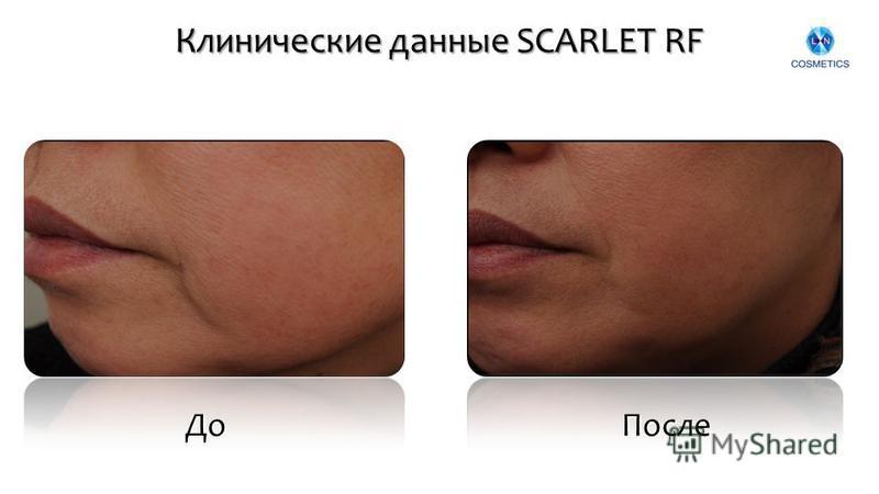 Клинические данные SCARLET RF До После