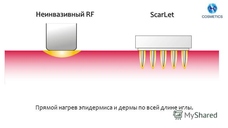 8 ScarLet Неинвазивный RF Прямой нагрев эпидермиса и дермы по всей длине иглы.