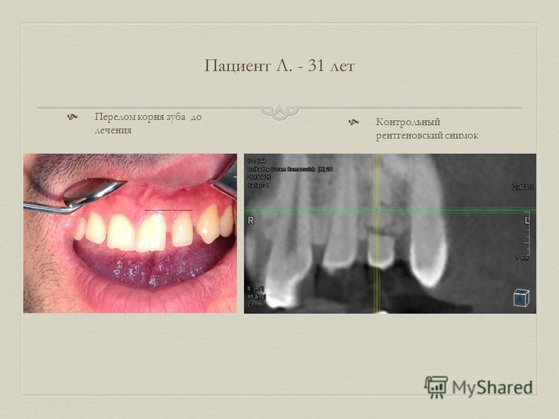 Пациент Л. - 31 лет Перелом корня зуба до лечения Контрольный рентгеновский снимок
