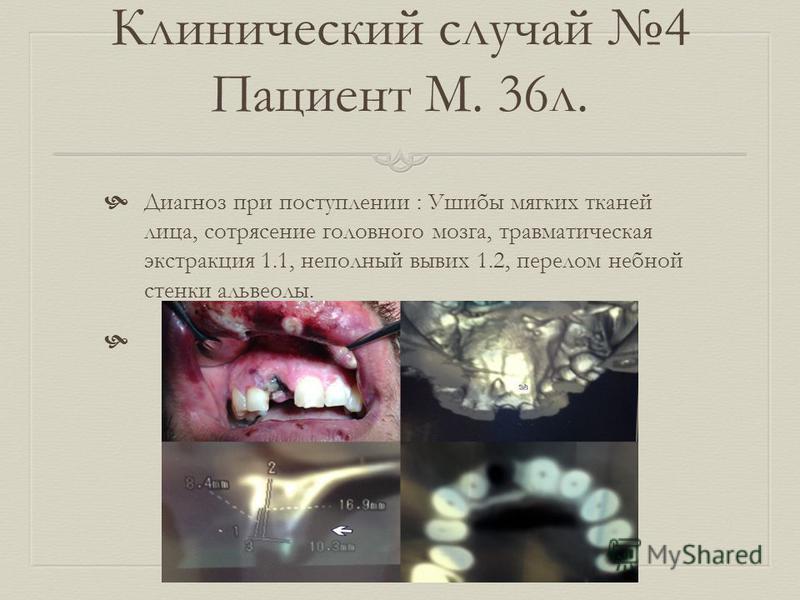 Клинический случай 4 Пациент М. 36 л. Диагноз при поступлении : Ушибы мягких тканей лица, сотрясение головного мозга, травматическая экстракция 1.1, неполный вывих 1.2, перелом небной стенки альвеолы.