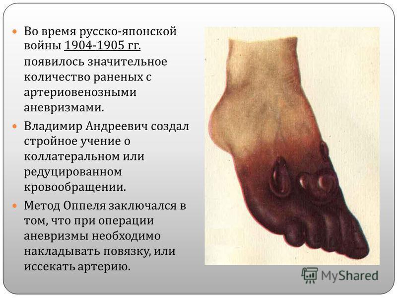 Во время русско - японской войны 1904-1905 гг. появилось значительное количество раненых с артериовенозными аневризмами. Владимир Андреевич создал стройное учение о коллатеральном или редуцированном кровообращении. Метод Оппеля заключался в том, что