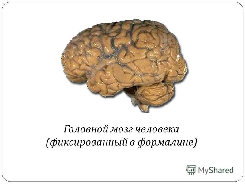 Головной мозг человека ( фиксированный в формалине )