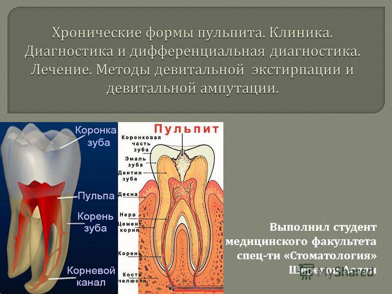 Выполнил студент медицинского факультета спец - ти « Стоматология » Шерегов Аслан