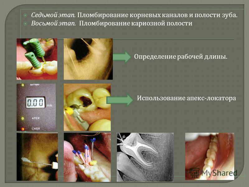 Седьмой этап. Пломбирование корневых каналов и полости зуба. Восьмой этап. Пломбирование кариозной полости Определение рабочей длины. Использование апекс - локатора.