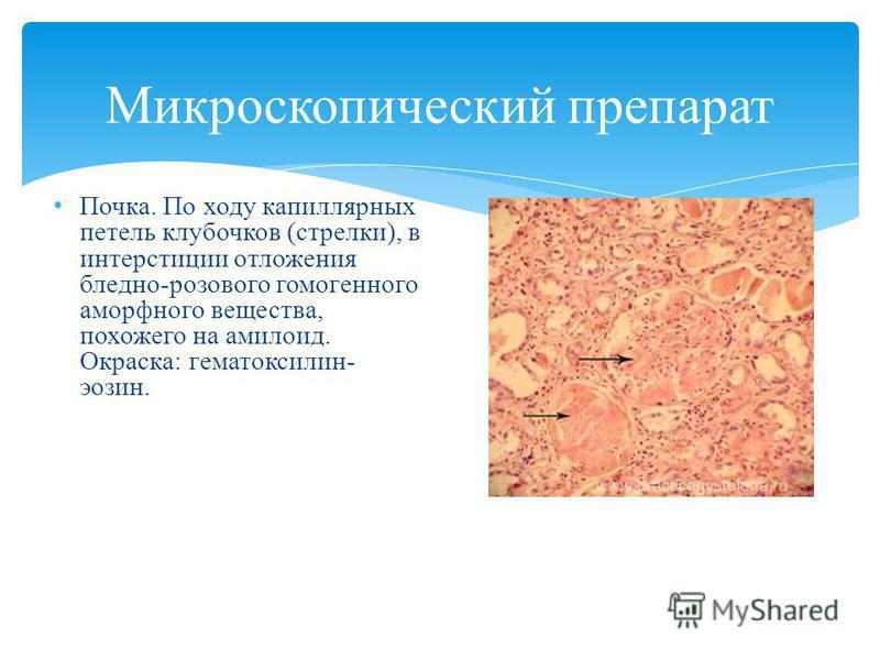 Микроскопический препарат Почка. По ходу капиллярных петель клубочков (стрелки), в интерстиции отложения бледно-розового гомогенного аморфного вещества, похожего на амилоид. Окраска: гематоксилин- эозин.