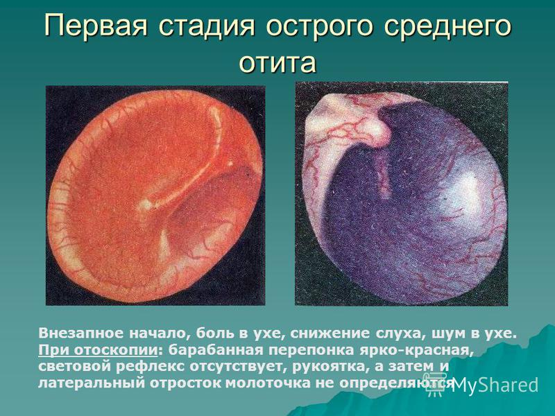 Первая стадия острого среднего отита Внезапное начало, боль в ухе, снижение слуха, шум в ухе. При отоскопии: барабанная перепонка ярко-красная, световой рефлекс отсутствует, рукоятка, а затем и латеральный отросток молоточка не определяются