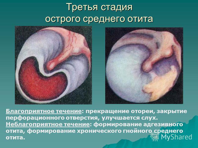 Третья стадия острого среднего отита Благоприятное течение: прекращение отореи, закрытие перфорационного отверстия, улучшается слух. Неблагоприятное течение: формирование адгезивного отита, формирование хронического гнойного среднего отита.