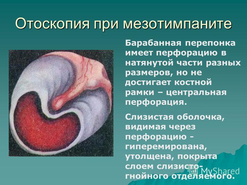 Отоскопия при мезотимпаните Барабанная перепонка имеет перфорацию в натянутой части разных размеров, но не достигает костной рамки – центральная перфорация. Слизистая оболочка, видимая через перфорацию - гиперемирована, утолщена, покрыта слоем слизис