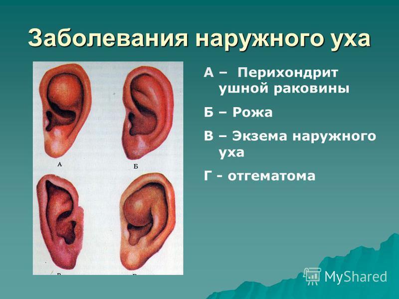 Заболевания наружного уха А – Перихондрит ушной раковины Б – Рожа В – Экзема наружного уха Г - отгематома