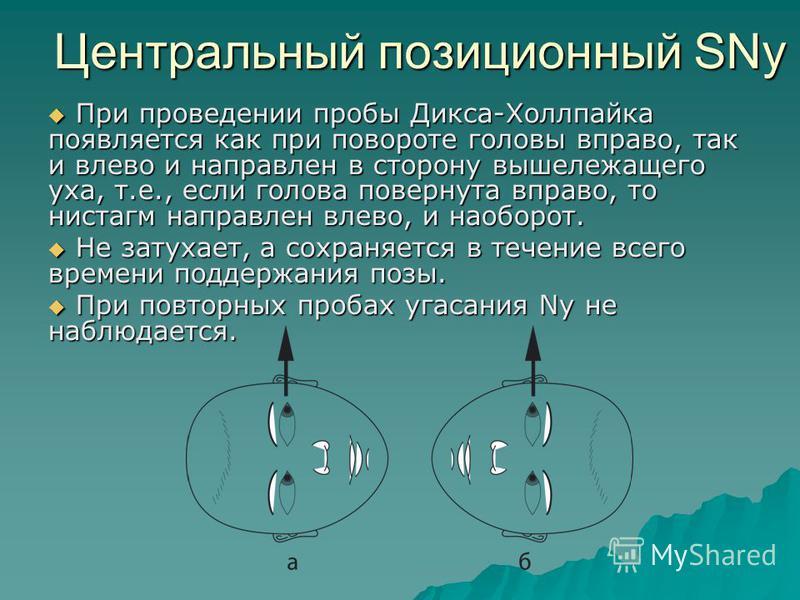 Центральный позиционный SNy При проведении пробы Дикса-Холлпайка появляется как при повороте головы вправо, так и влево и направлен в сторону вышележащего уха, т.е., если голова повернута вправо, то нистагм направлен влево, и наоборот. При проведении