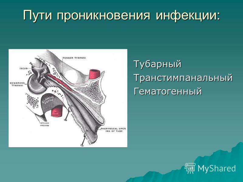 Пути проникновения инфекции: Тубарный ТранстимпанальныйГематогенный
