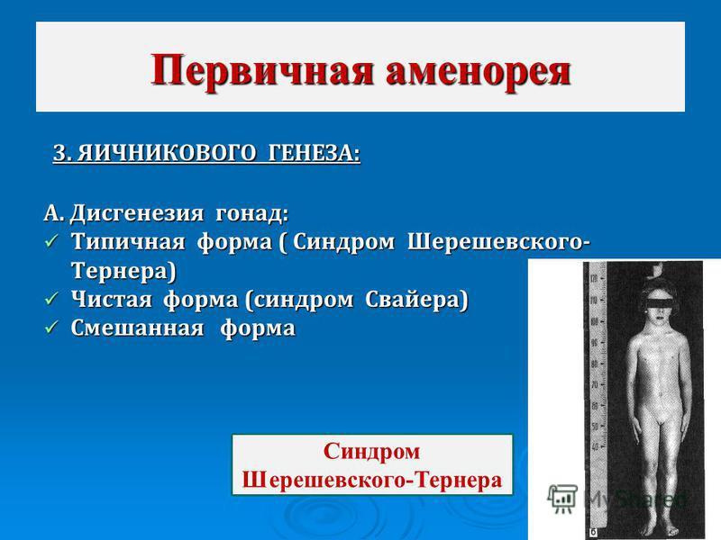 3. ЯИЧНИКОВОГО ГЕНЕЗА: 3. ЯИЧНИКОВОГО ГЕНЕЗА: А. Дисгенезия гонад: Типичная форма ( Синдром Шерешевского- Тернера) Типичная форма ( Синдром Шерешевского- Тернера) Чистая форма (синдром Свайера) Чистая форма (синдром Свайера) Смешанная форма Смешанная