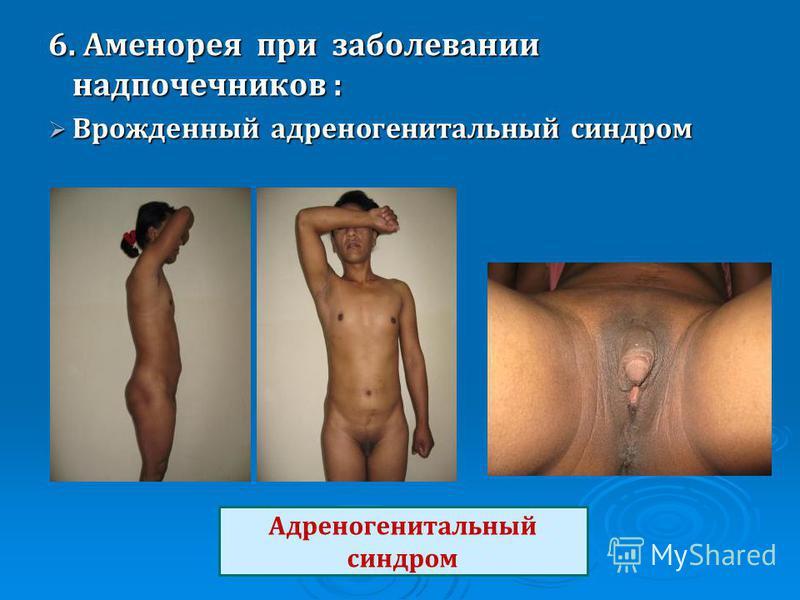 6. Аменорея при заболевании надпочечников : Врожденный адреногенитальный синдром Врожденный адреногенитальный синдром Адреногенитальный синдром