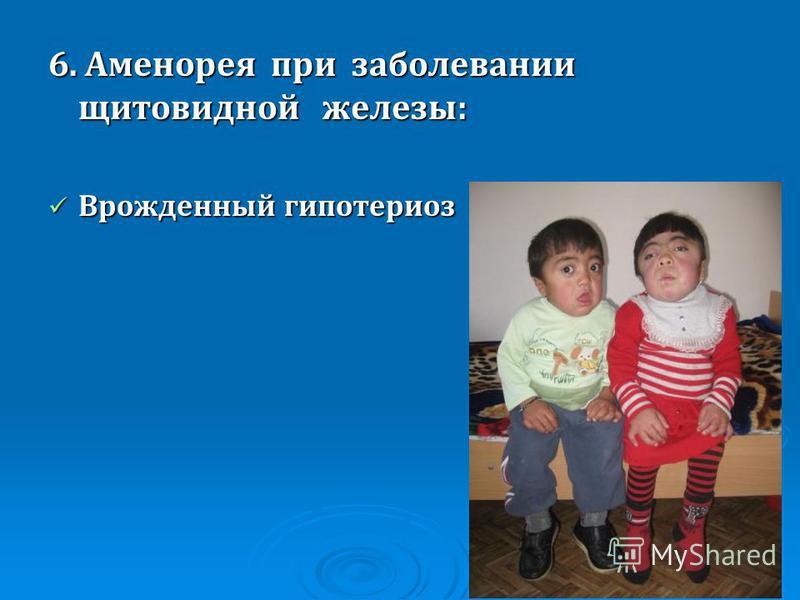Синдром Свайера фото