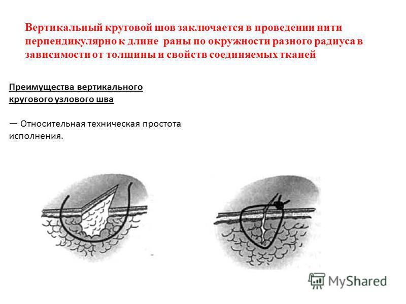 Вертикальный круговой шов заключается в проведении нити перпендикулярно к длине раны по окружности разного радиуса в зависимости от толщины и свойств соединяемых тканей Преимущества вертикального кругового узлового шва Относительная техническая прост