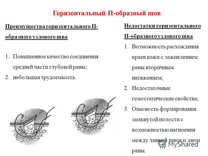 Горизонтальный П-образный шов Преимущества горизонтального П- образного узлового шва 1. Повышенное качество соединения средней части глубокой раны; 2. небольшая трудоемкость. Недостатки горизонтального П-образного узлового шва 1. Возможность расхожде