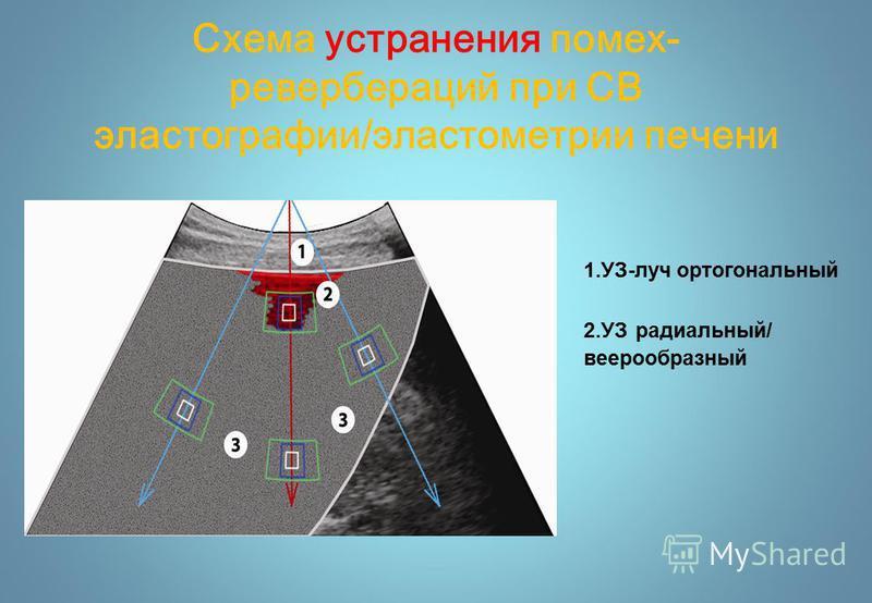 Схема устранения помех- ревербераций при СВ эластографии/эластометрии печени 1.УЗ-луч ортогональный 2. УЗ радиальный/ веерообразный