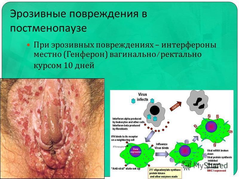Эрозивные повреждения в постменопаузе При эрозивных повреждениях – интерфероны местно ( Генферон ) вагинально / ректально курсом 10 дней
