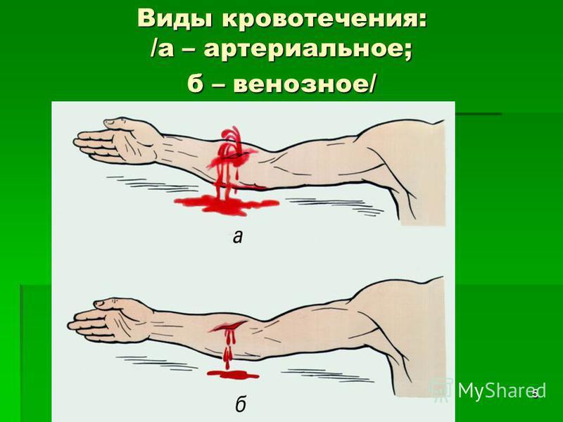 5 Виды кровотечения: /а – артериальное; б – венозное/