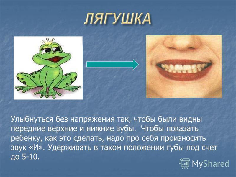 Улыбнуться без напряжения так, чтобы были видны передние верхние и нижние зубы. Чтобы показать ребенку, как это сделать, надо про себя произносить звук «И». Удерживать в таком положении губы под счет до 5-10.