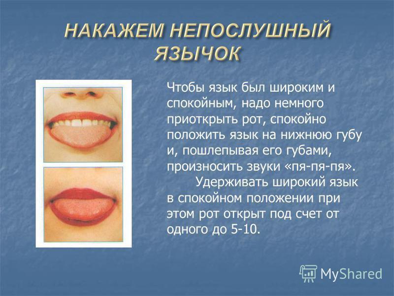 Чтобы язык был широким и спокойным, надо немного приоткрыть рот, спокойно положить язык на нижнюю губу и, пошлепывая его губами, произносить звуки «пя-пя-пя». Удерживать широкий язык в спокойном положении при этом рот открыт под счет от одного до 5-1