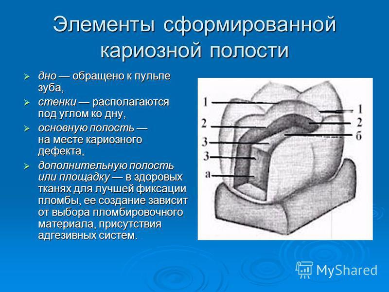 Элементы сформированной кариозной полости дно обращено к пульпе зуба, дно обращено к пульпе зуба, стенки располагаются под углом ко дну, стенки располагаются под углом ко дну, основную полость на месте кариозного дефекта, основную полость на месте ка