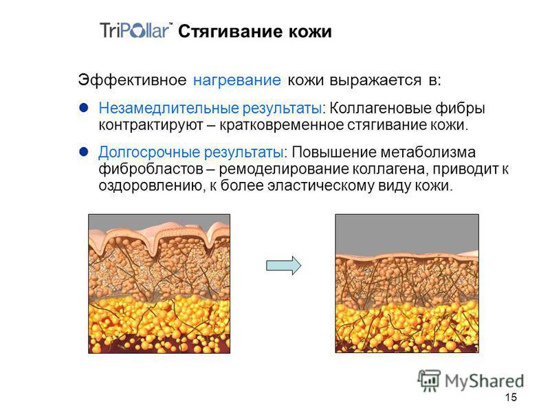 15 Стягивание кожи Эффективное нагревание кожи выражается в: Незамедлительные результаты: Коллагеновые фибры контактируют – кратковременное стягивание кожи. Долгосрочные результаты: Повышение метаболизма фибробластов – моделирование коллагена, привод