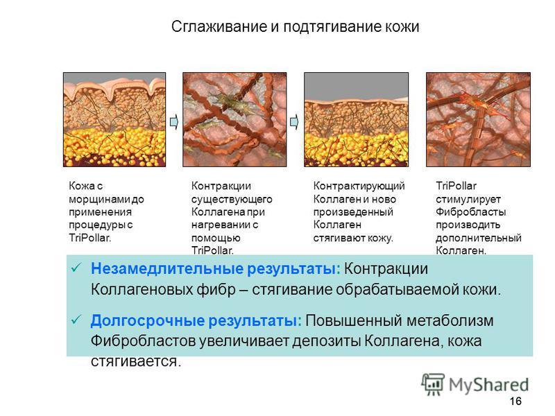 16 Сглаживание и подтягивание кожи Незамедлительные результаты: Контракции Коллагеновых фибр – стягивание обрабатываемой кожи. Долгосрочные результаты: Повышенный метаболизм Фибробластов увеличивает депозиты Коллагена, кожа стягивается. Кожа с морщин