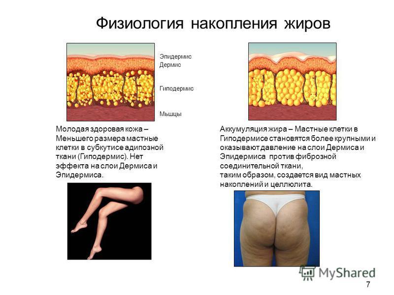 7 Физиология накопления жиров Молодая здоровая кожа – Меньшего размера мастные клетки в субкутисе адипозной ткани (Гиподермис). Нет эффекта на слои Дермиса и Эпидермиса. Эпидермис Дермис Гиподермис Аккумуляция жира – Мастные клетки в Гиподермисе стан