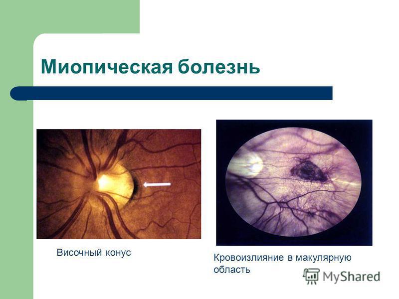 Миопическая болезнь Височный конус Кровоизлияние в макулярную область