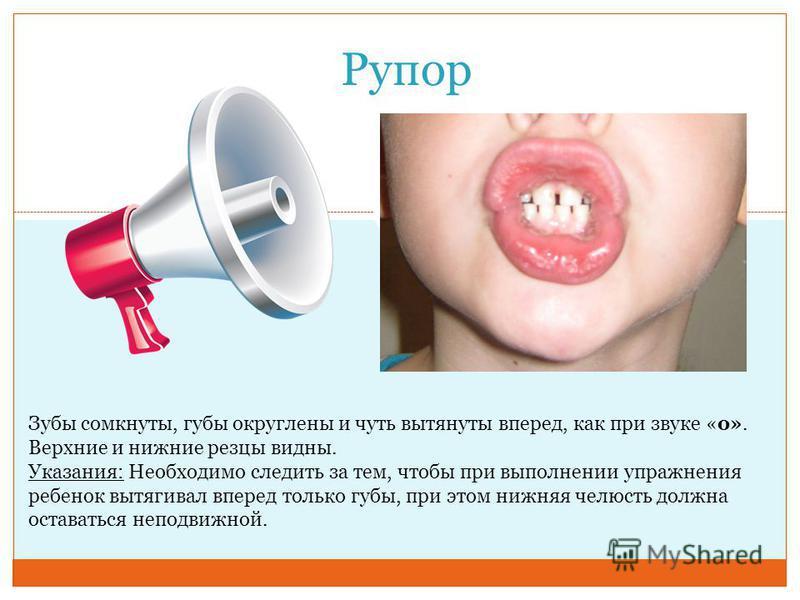 Рупор Зубы сомкнуты, губы округлены и чуть вытянуты вперед, как при звуке «о». Верхние и нижние резцы видны. Указания: Необходимо следить за тем, чтобы при выполнении упражнения ребенок вытягивал вперед только губы, при этом нижняя челюсть должна ост