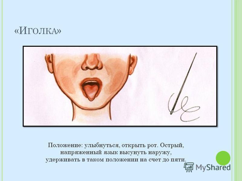«И ГОЛКА » Положение: улыбнуться, открыть рот. Острый, напряженный язык высунуть наружу, удерживать в таком положении на счет до пяти.